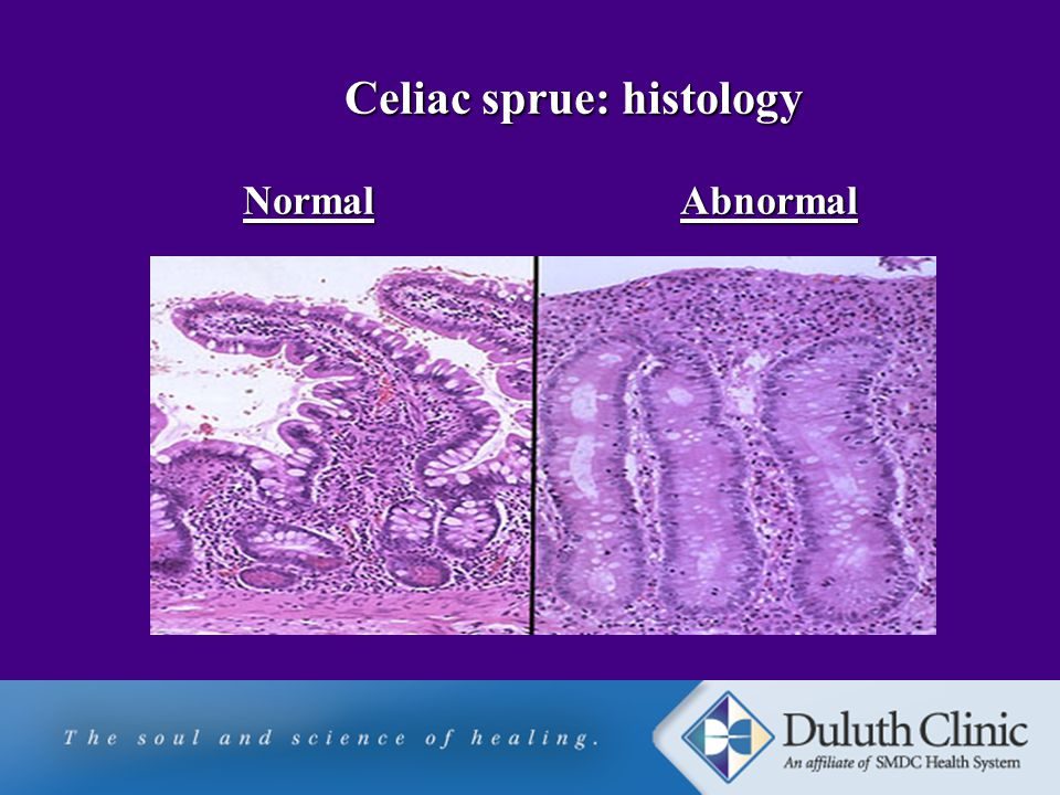 Celiac sprue: histology Normal Abnormal Celiac sprue: histology Normal Abnormal