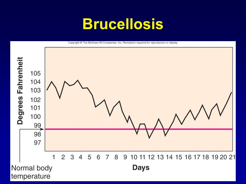 9 Brucellosis