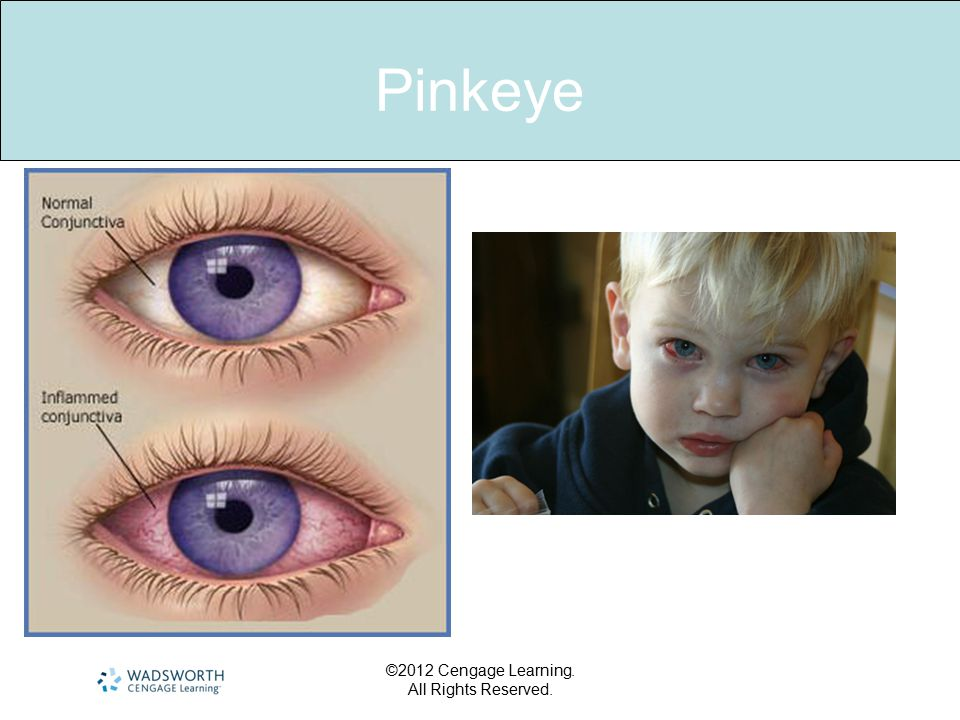Pinkeye ©2012 Cengage Learning. All Rights Reserved.