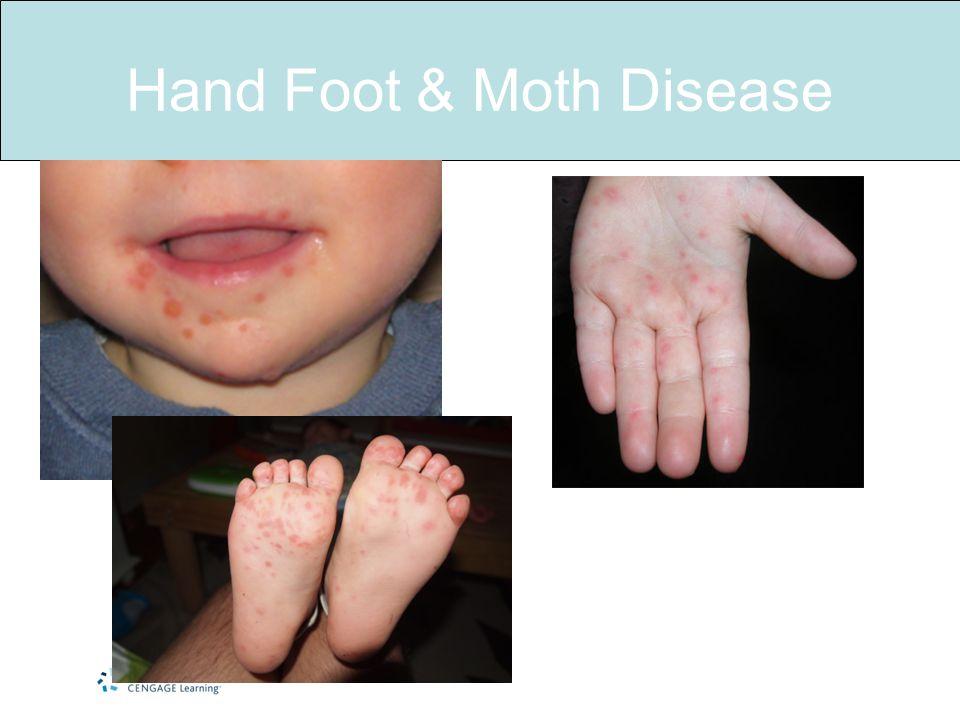 Hand Foot & Moth Disease