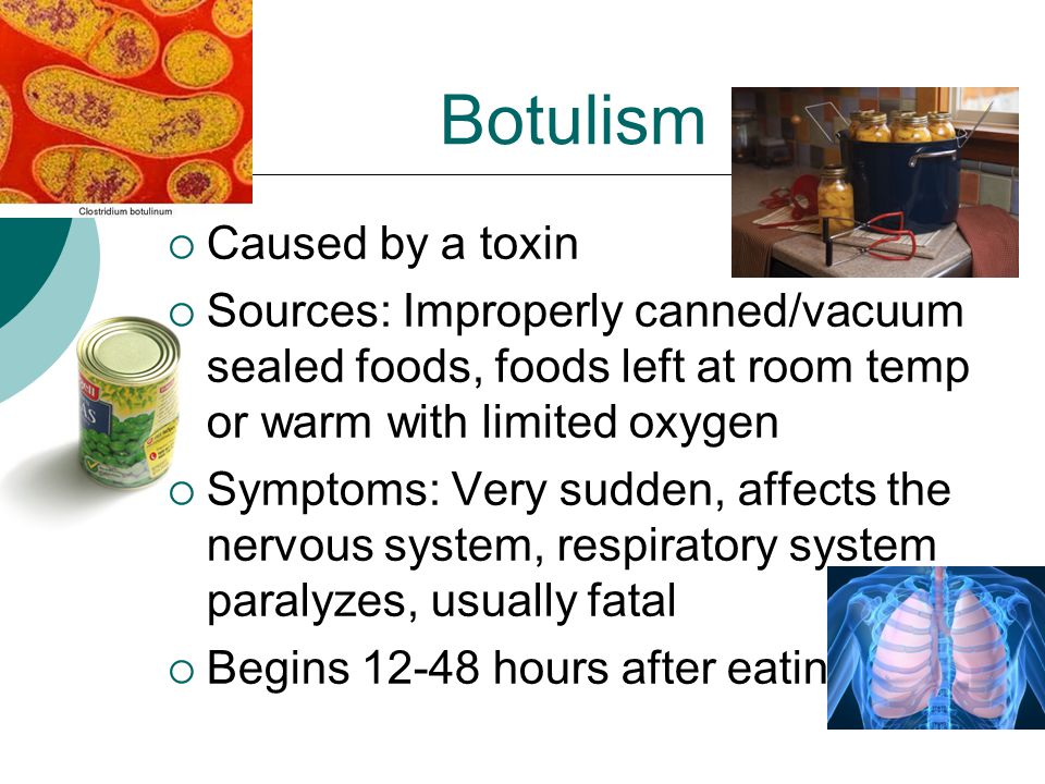 Botulism  Caused by a toxin  Sources: Improperly canned/vacuum sealed foods, foods left at room temp or warm with limited oxygen  Symptoms: Very sudden, affects the nervous system, respiratory system paralyzes, usually fatal  Begins 12-48 hours after eating