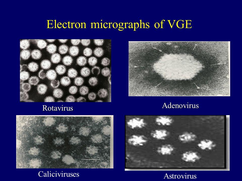Electron micrographs of VGE Rotavirus Adenovirus Adenovirus Caliciviruses Astrovirus