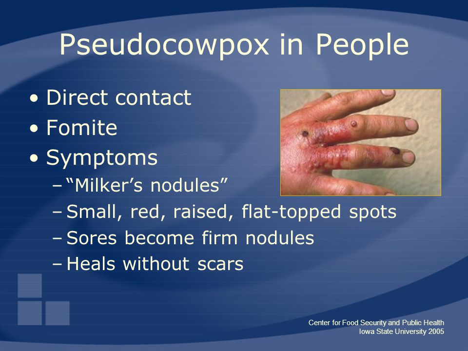 "Center for Food Security and Public Health Iowa State University 2005 Pseudocowpox in People Direct contact Fomite Symptoms –""Milker's nodules"" –Small"