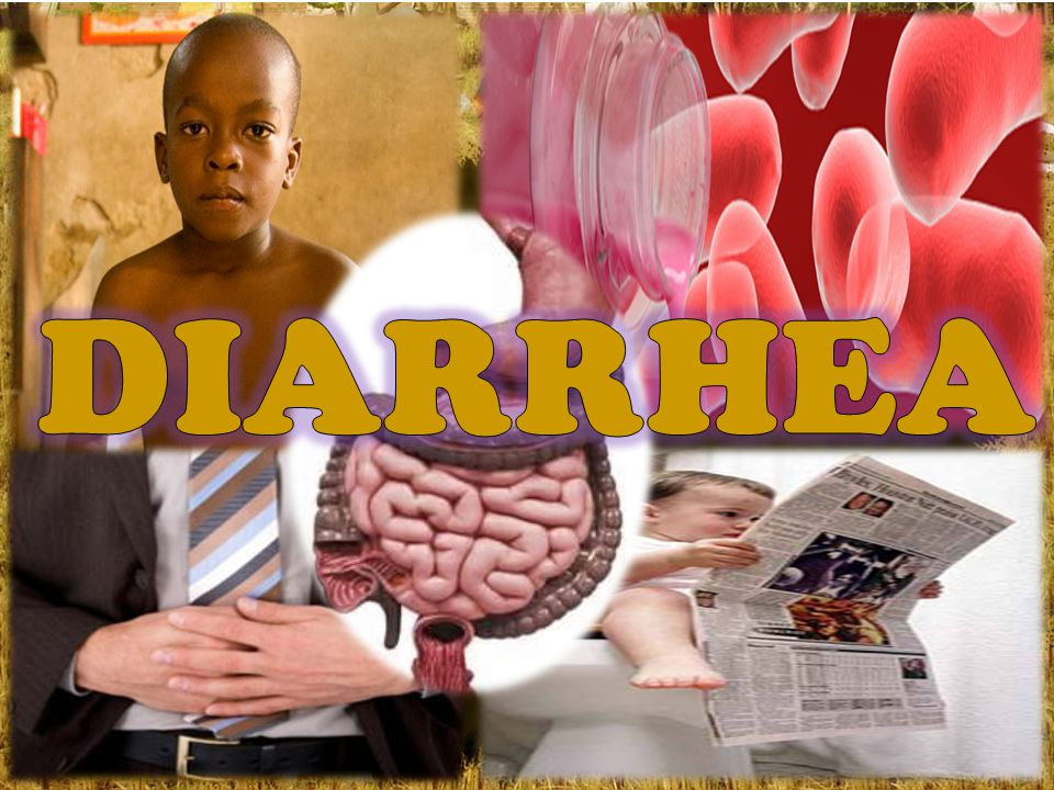 Diarrhea is a condition that involves the frequent passing of loose or watery stools.