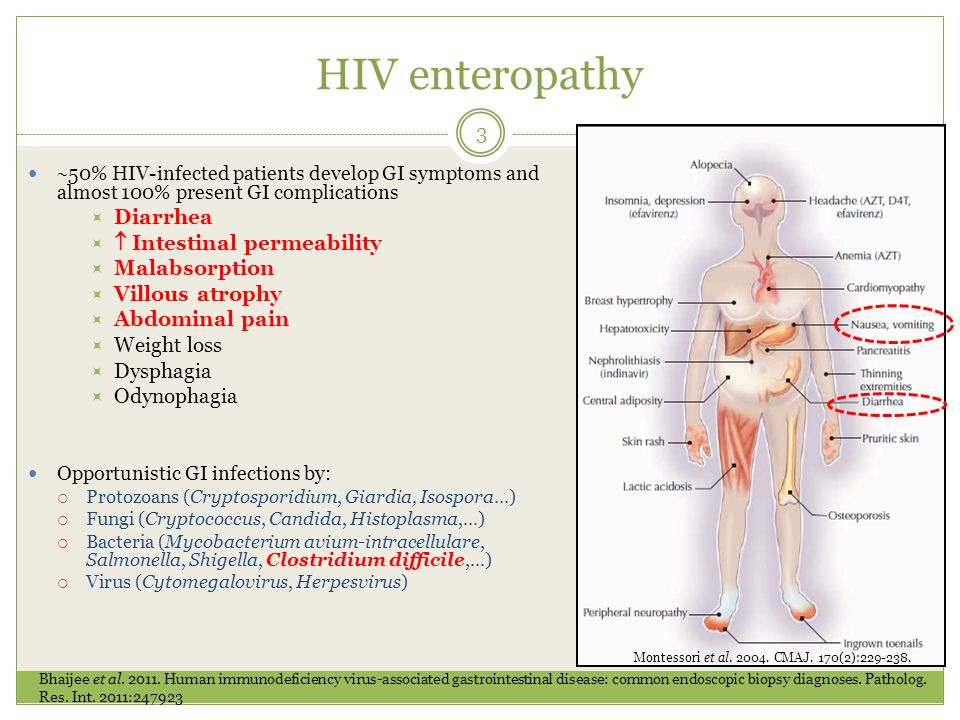 Protocol synopsis 14 X HIV-infected patients X on ART + Imodium + Placebo X on ART + Imodium + Bio-K+ ® Outcomes  diarrhea and SAEs  OIs Stabilization of CD4 Suppression of viral load Improvements of micronutrients level  adherence and persistence to HAART DEXA + BIA Inclusion Confirmed HIV infection HIV-related anemia PCP, thrush, vaginosis, vaginitis Anal dysplasia Hairy leucopenia