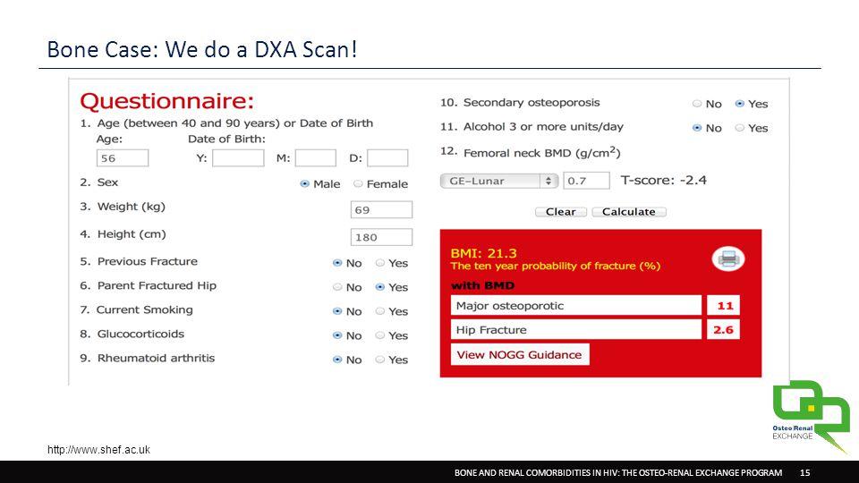 BONE AND RENAL COMORBIDITIES IN HIV: THE OSTEO-RENAL EXCHANGE PROGRAM 15 Bone Case: We do a DXA Scan.