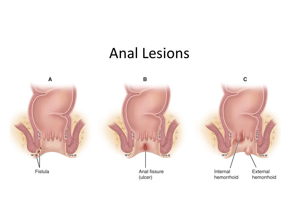 Anal Lesions
