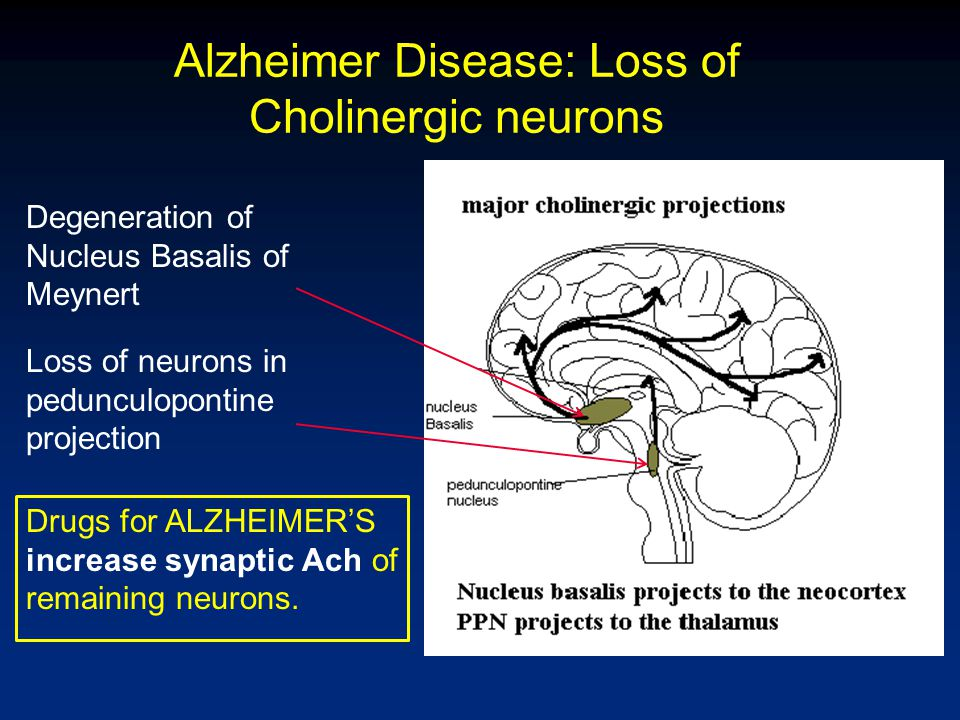 Alzheimer Disease: Loss of Cholinergic neurons Degeneration of Nucleus Basalis of Meynert Loss of neurons in pedunculopontine projection Drugs for ALZ