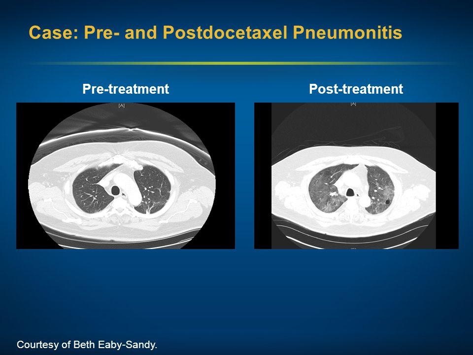 Case: Pre- and Postdocetaxel Pneumonitis Courtesy of Beth Eaby-Sandy. Pre-treatmentPost-treatment