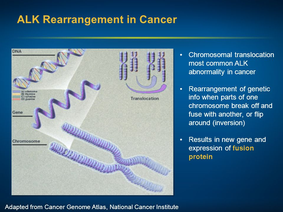 ALK Rearrangement in Cancer Adapted from Cancer Genome Atlas, National Cancer Institute Chromosomal translocation most common ALK abnormality in cance