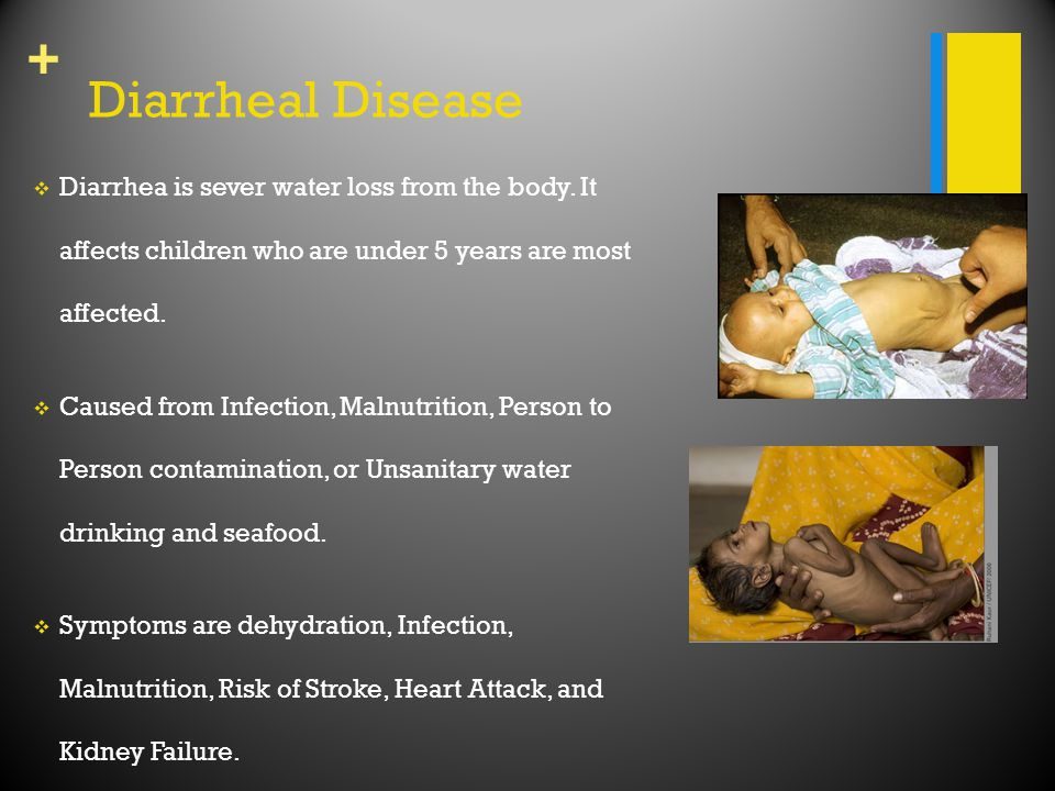 + Diarrheal Disease  Diarrhea is sever water loss from the body. It affects children who are under 5 years are most affected.  Caused from Infection