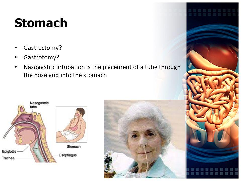 Stomach Gastrectomy. Gastrotomy.