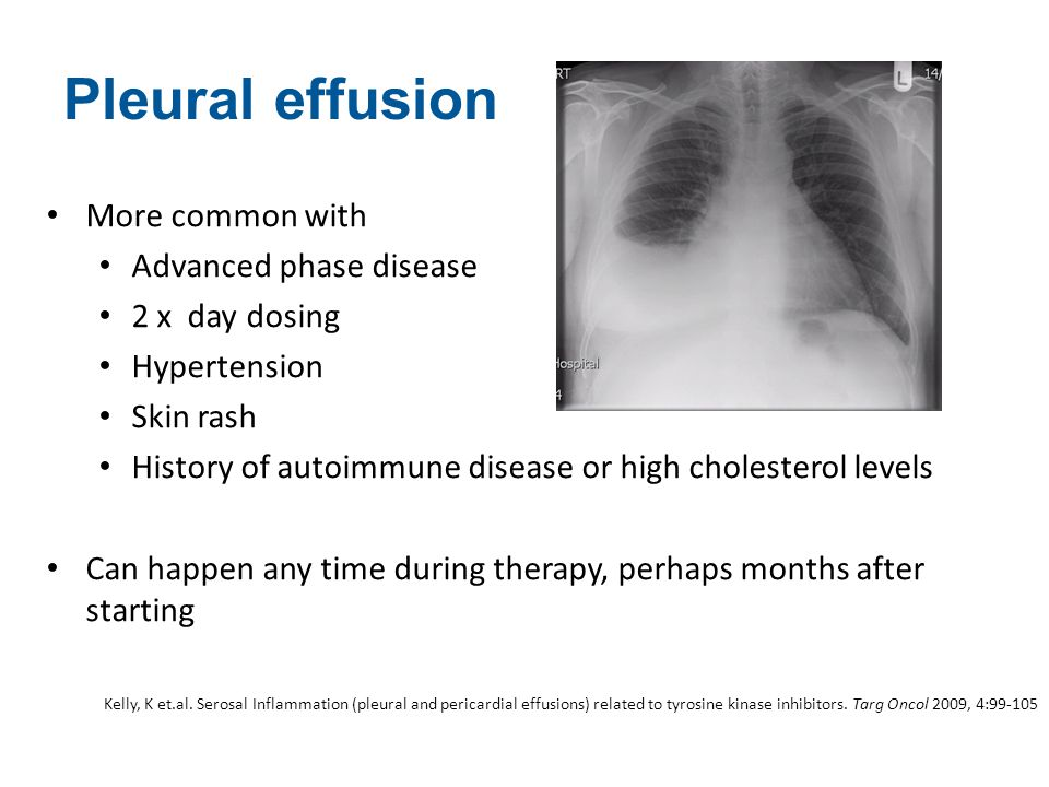 Pleural effusion More common with Advanced phase disease 2 x day dosing Hypertension Skin rash History of autoimmune disease or high cholesterol level