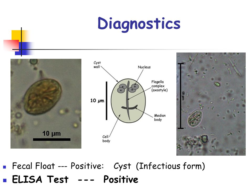 Diagnostics Fecal Float --- Positive: Cyst (Infectious form) ELISA Test --- Positive