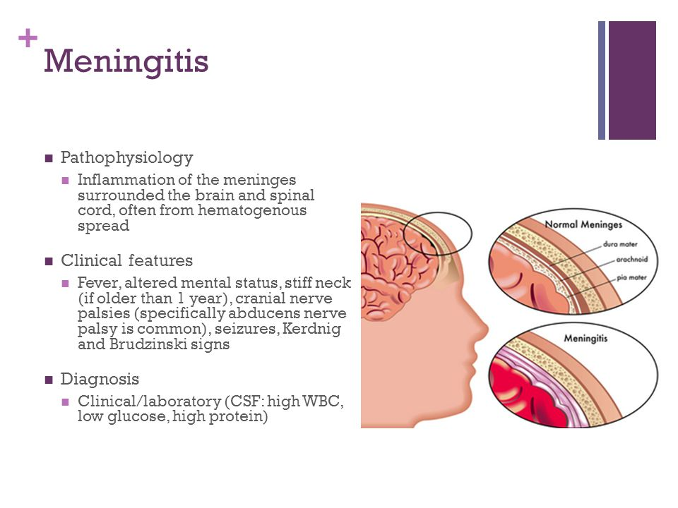 + Meningitis Pathophysiology Inflammation of the meninges surrounded the brain and spinal cord, often from hematogenous spread Clinical features Fever