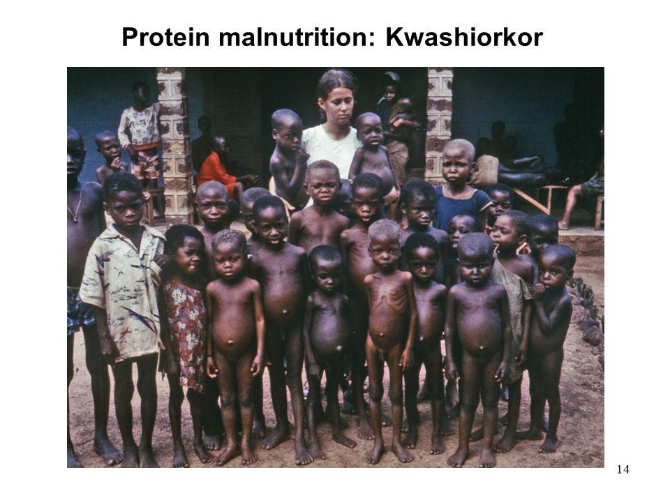 14 Protein malnutrition: Kwashiorkor