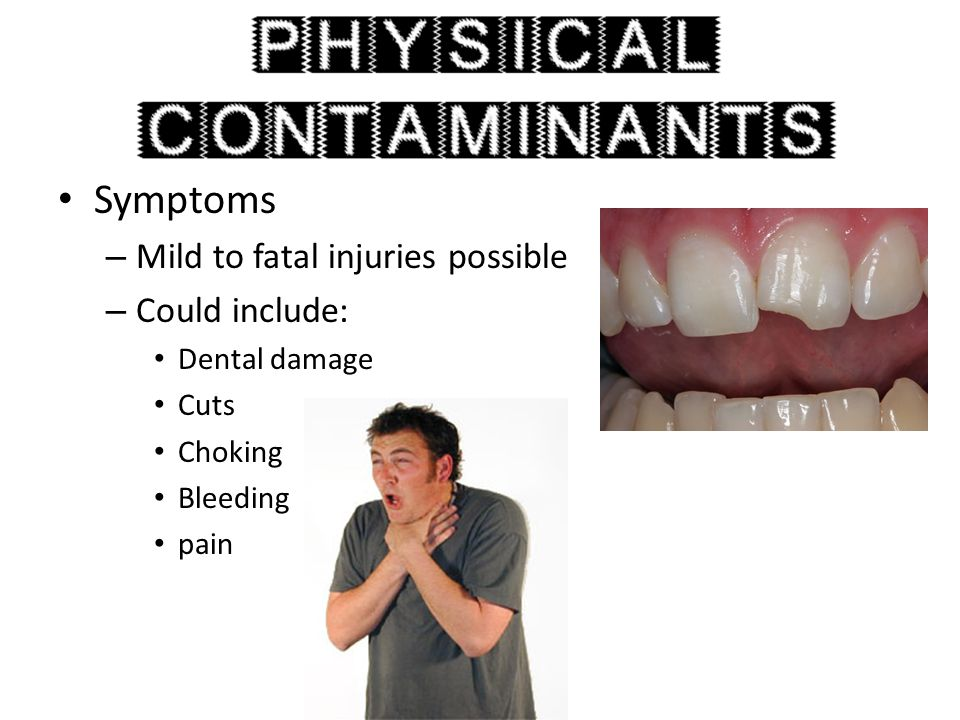 Symptoms – Mild to fatal injuries possible – Could include: Dental damage Cuts Choking Bleeding pain
