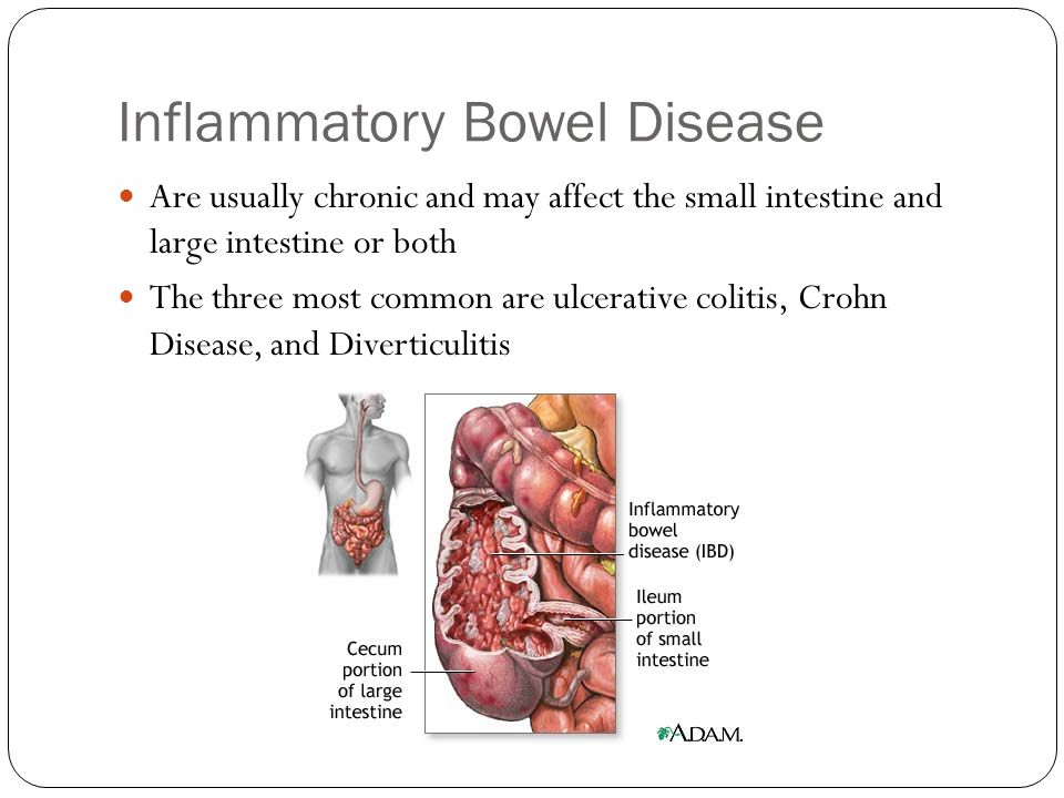 Inflammatory Bowel Disease Are usually chronic and may affect the small intestine and large intestine or both The three most common are ulcerative col