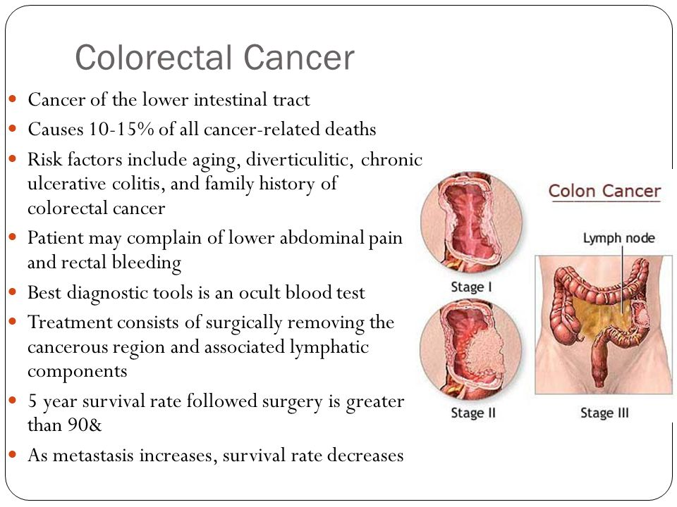 Colorectal Cancer Cancer of the lower intestinal tract Causes 10-15% of all cancer-related deaths Risk factors include aging, diverticulitic, chronic