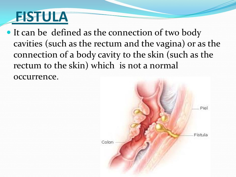 FISTULA It can be defined as the connection of two body cavities (such as the rectum and the vagina) or as the connection of a body cavity to the skin (such as the rectum to the skin) which is not a normal occurrence.