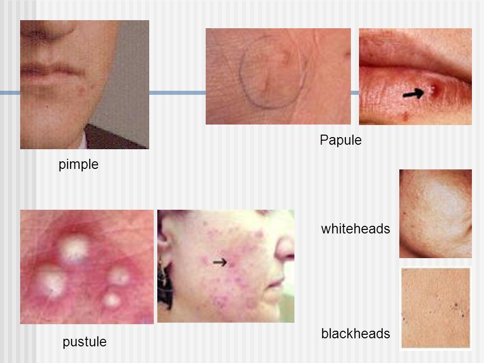 pimple Papule pustule blackheads whiteheads