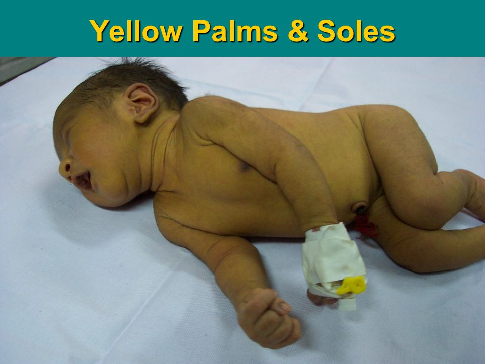 Teaching Aids: NNF DS- 16 Yellow Palms & Soles