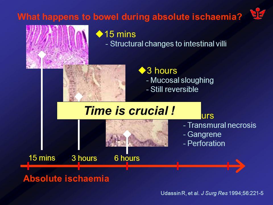 Mesenteric ischaemia Acute Mesenteric Ischaemia Chronic Mesenteric Ischaemia Arterial occlusion Venous occlusion Non-occlusive Embolism 20-30% Thrombosis 50% Mesenteric Venous thrombosis (MVT) 15% Non-occlusive Mesenteric ischaemia (NOMI) 15% Bradbury AW, et al.