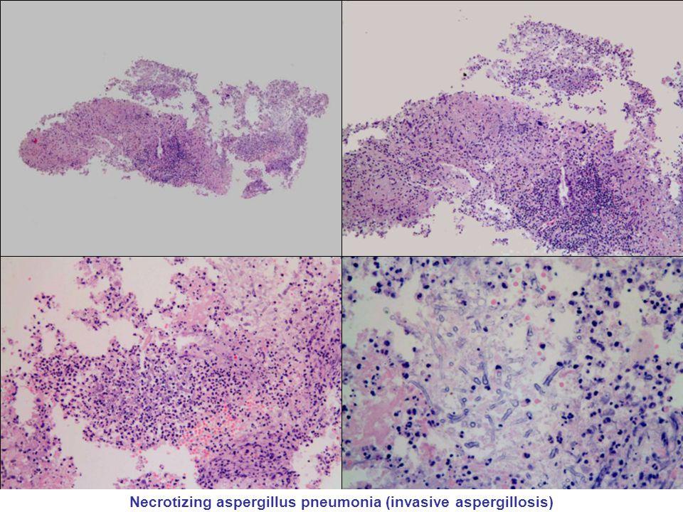 Necrotizing aspergillus pneumonia (invasive aspergillosis)