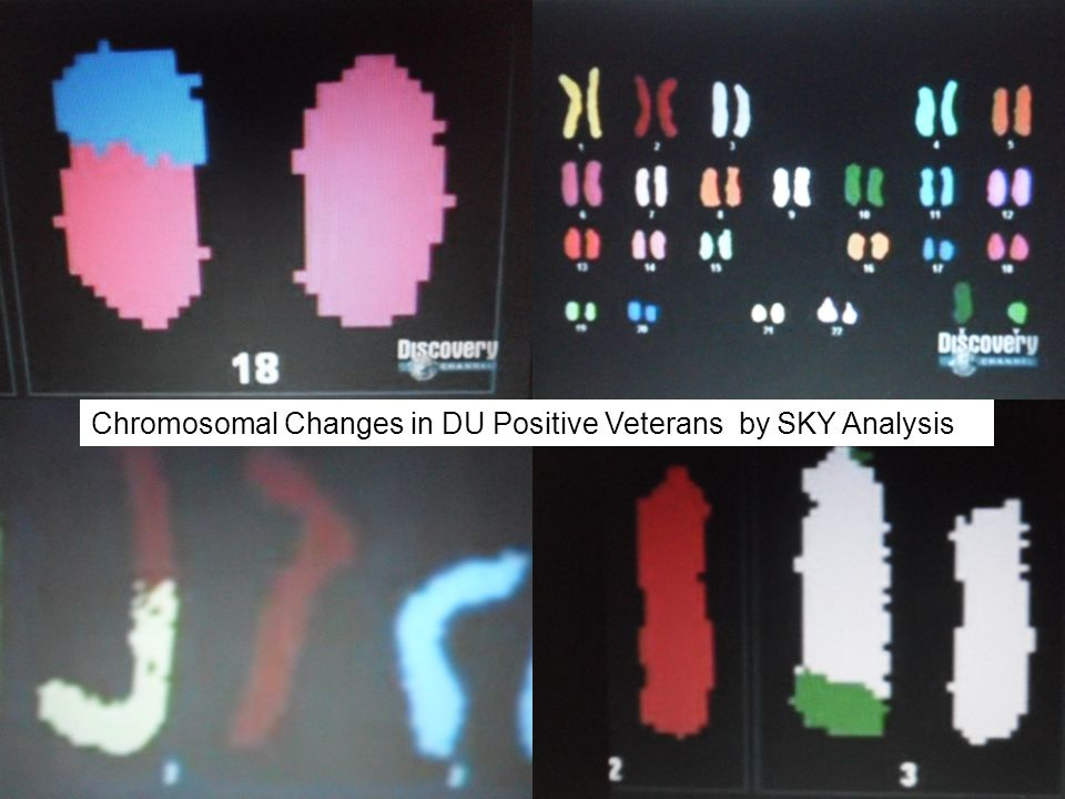 Chromosomal Changes in DU Positive Veterans by SKY Analysis