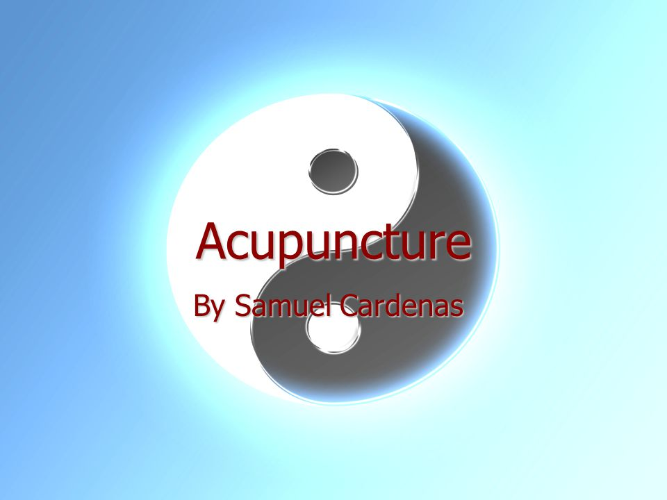 Acupuncture By Samuel Cardenas