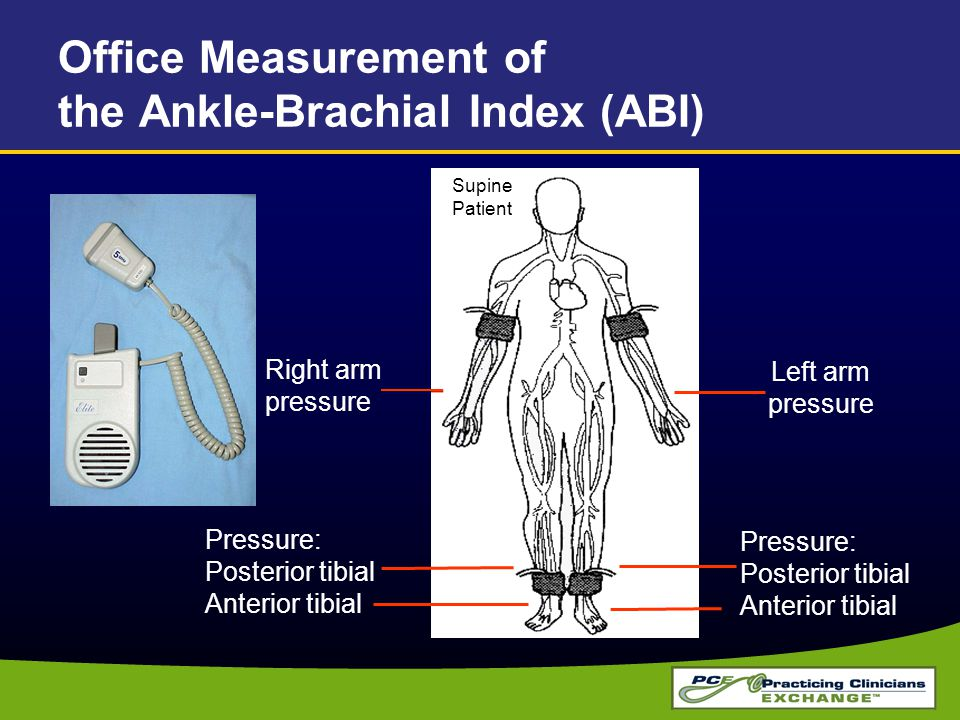 Office Measurement of the Ankle-Brachial Index (ABI) Right arm pressure Pressure: Posterior tibial Anterior tibial Pressure: Posterior tibial Anterior