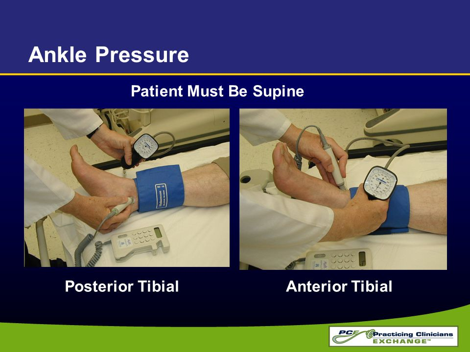 Ankle Pressure Posterior Tibial Anterior Tibial Patient Must Be Supine