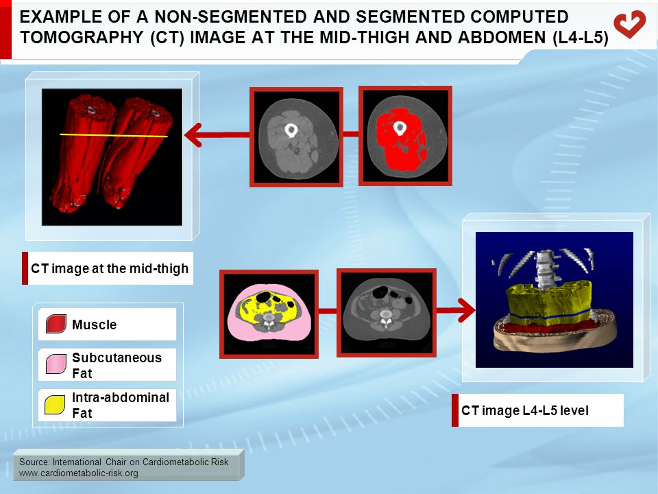 Source: International Chair on Cardiometabolic Risk www.cardiometabolic-risk.org EXAMPLE OF A NON-SEGMENTED AND SEGMENTED COMPUTED TOMOGRAPHY (CT) IMA