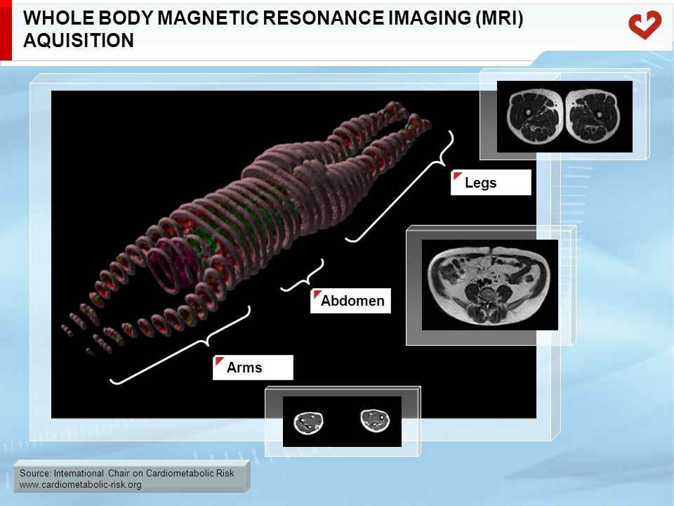 Source: International Chair on Cardiometabolic Risk www.cardiometabolic-risk.org WHOLE BODY MAGNETIC RESONANCE IMAGING (MRI) AQUISITION Legs Abdomen Arms