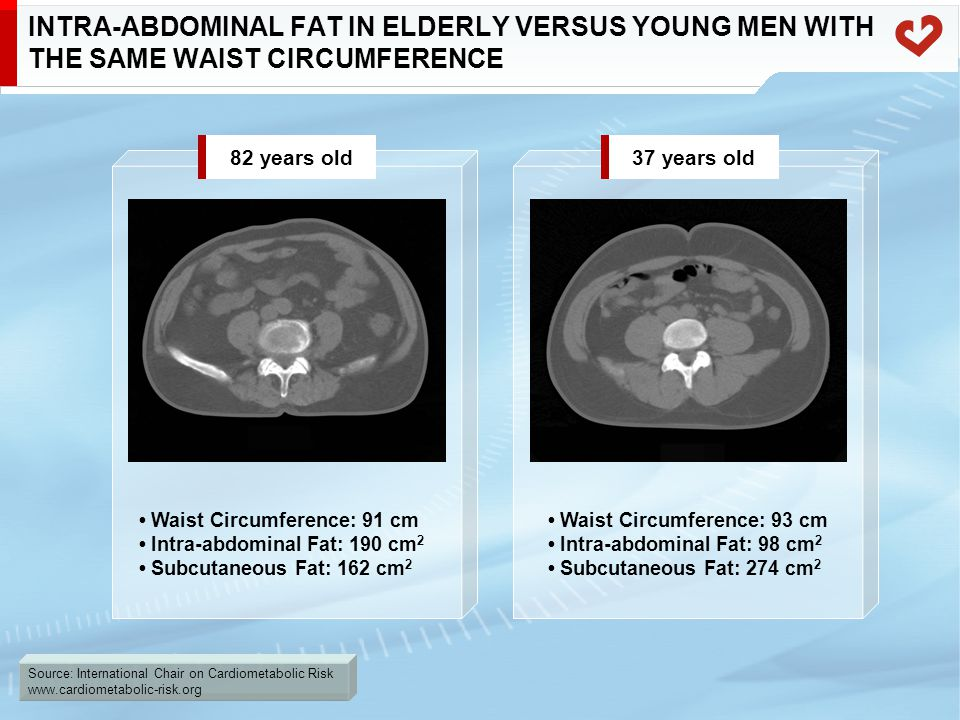 Source: International Chair on Cardiometabolic Risk www.cardiometabolic-risk.org INTRA-ABDOMINAL FAT IN ELDERLY VERSUS YOUNG MEN WITH THE SAME WAIST C
