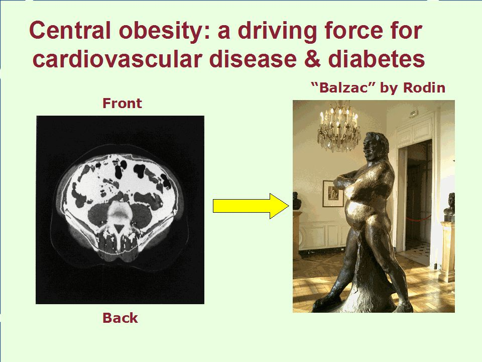 """Central obesity: a driving force for cardiovascular disease & diabetes """"Balzac"""" by Rodin Front Back"""