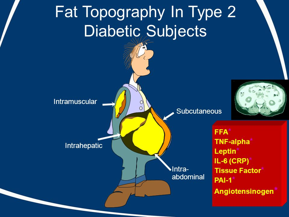 Fat Topography In Type 2 Diabetic Subjects Intramuscular Intrahepatic Subcutaneous Intra- abdominal FFA * TNF-alpha * Leptin * IL-6 (CRP) * Tissue Factor * PAI-1 * Angiotensinogen *
