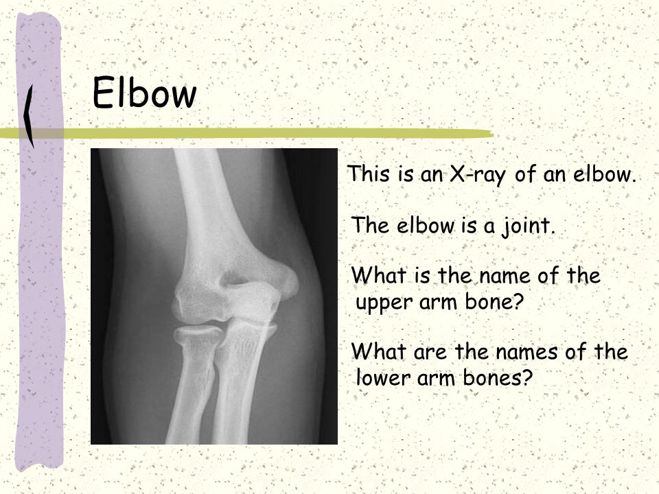 Elbow This is an X-ray of an elbow. The elbow is a joint.