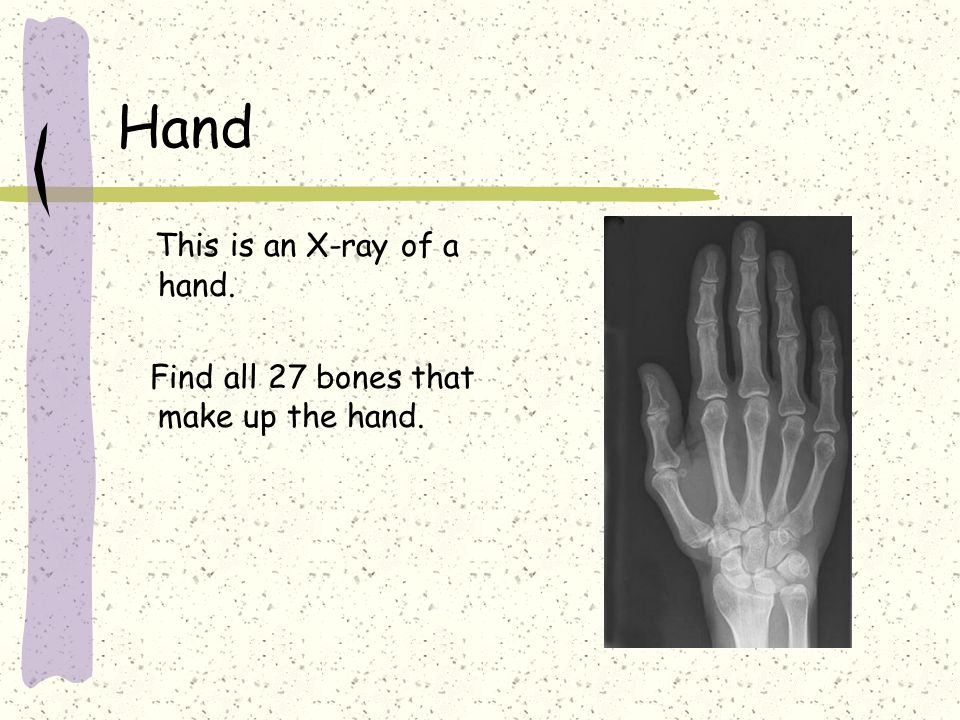 Hand This is an X-ray of a hand. Find all 27 bones that make up the hand.