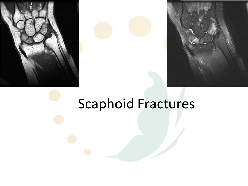 What about the undisplaced waist fractures??.