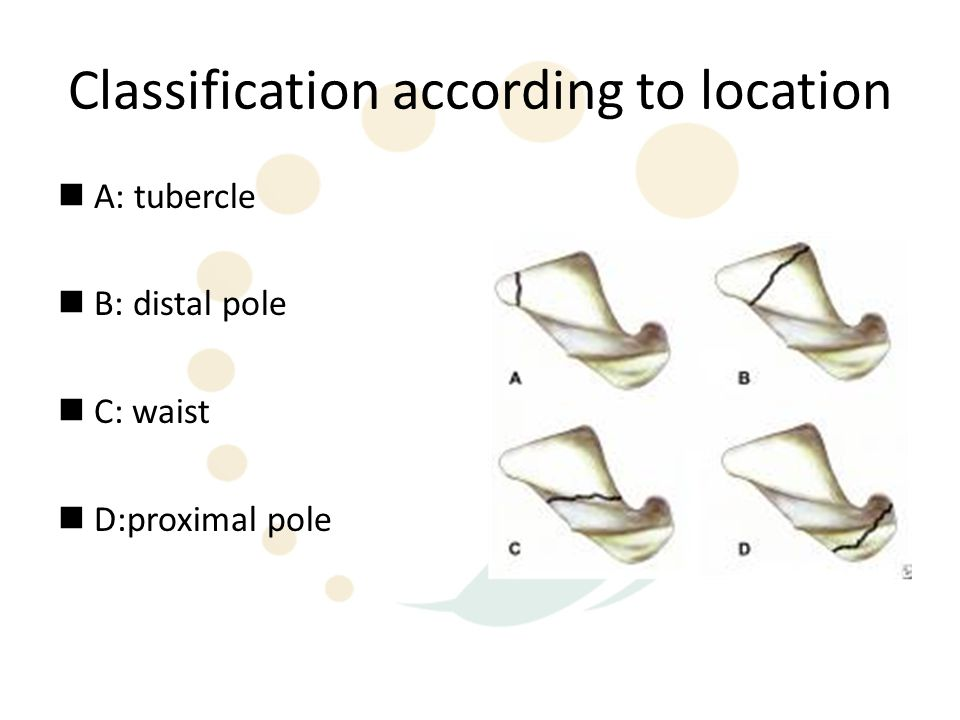 Classification according to location A: tubercle B: distal pole C: waist D:proximal pole