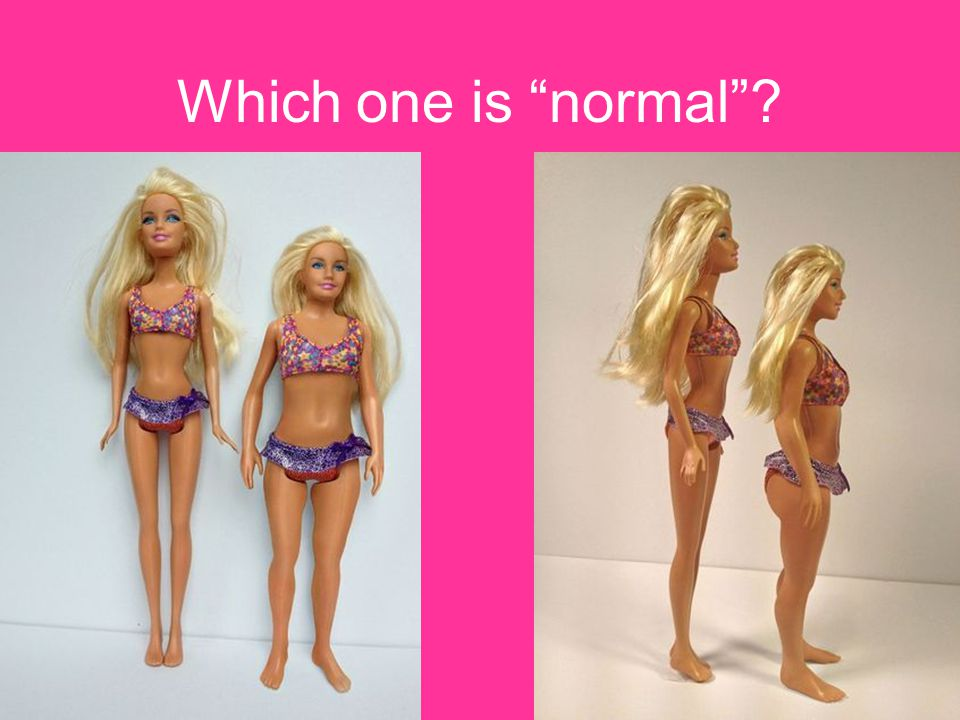 """Which one is """"normal""""?"""