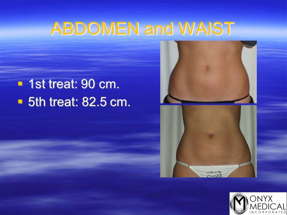 ABDOMEN and WAIST  1st treat: 90 cm.  5th treat: 82.5 cm.