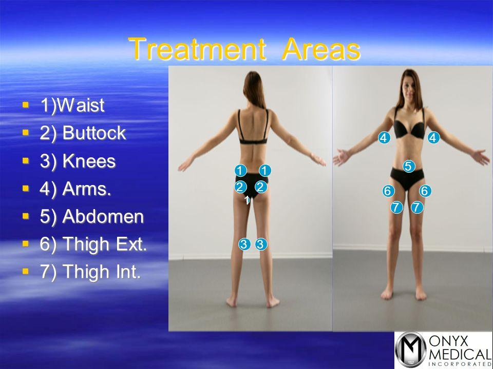 Treatment Areas  1)Waist  2) Buttock  3) Knees  4) Arms.  5) Abdomen  6) Thigh Ext.  7) Thigh Int. 11 1 22 33 44 5 66 77