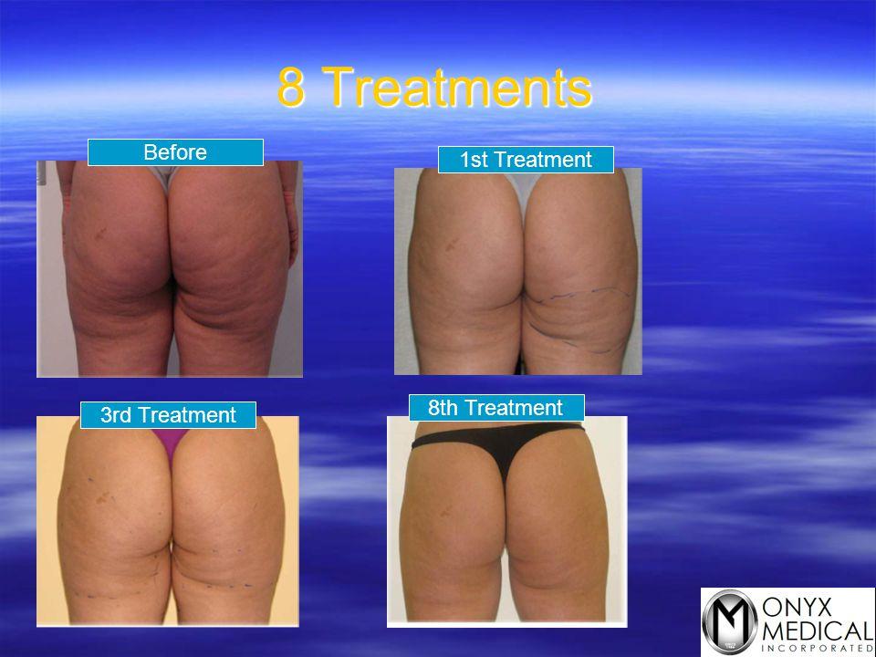 8 Treatments Before 1st Treatment 3rd Treatment 8th Treatment