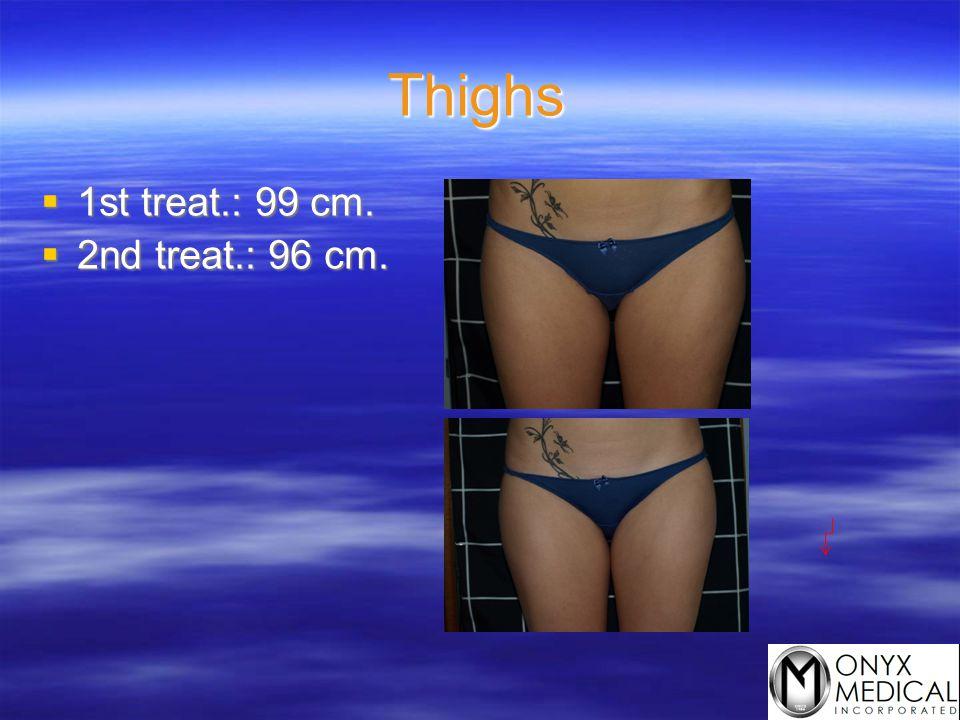 Thighs  1st treat.: 99 cm.  2nd treat.: 96 cm.