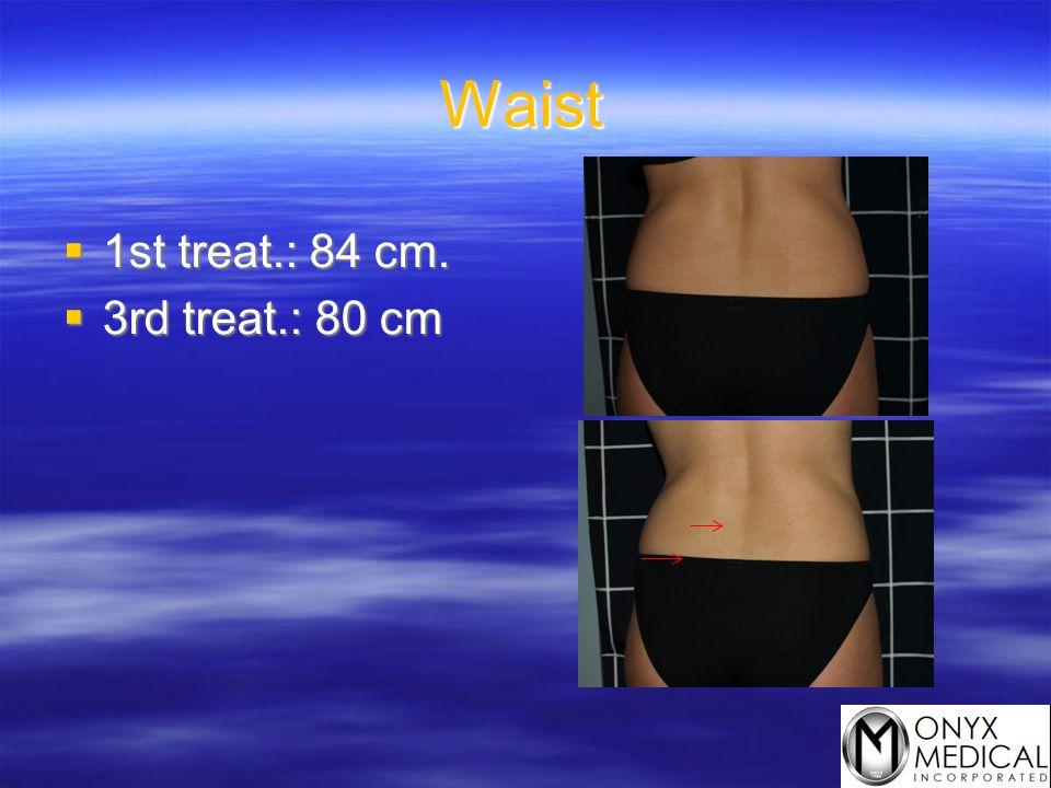 Waist  1st treat.: 84 cm.  3rd treat.: 80 cm