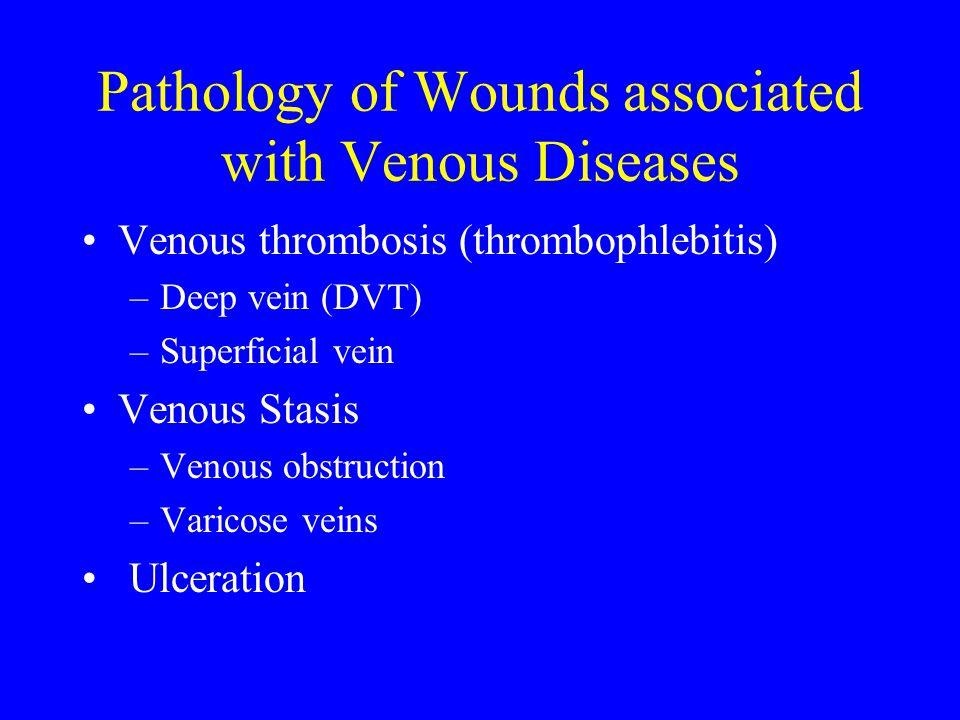 Pathology of Wounds associated with Venous Diseases Venous thrombosis (thrombophlebitis) –Deep vein (DVT) –Superficial vein Venous Stasis –Venous obst