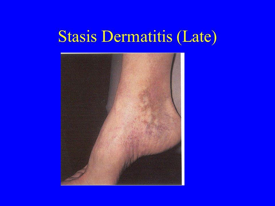 Stasis Dermatitis (Late)