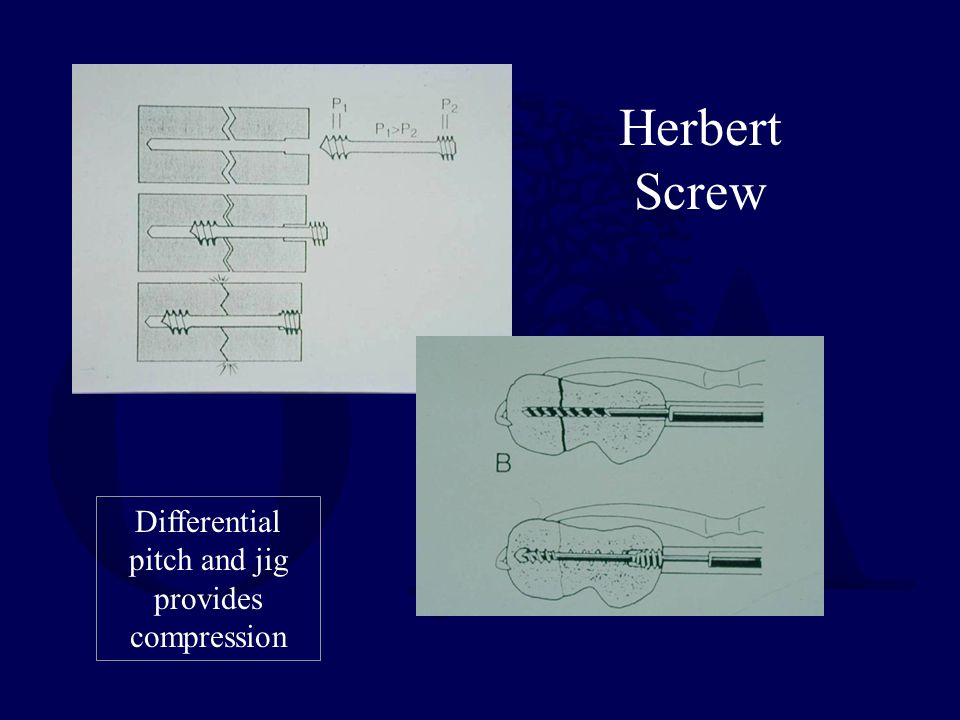 Herbert Screw Differential pitch and jig provides compression